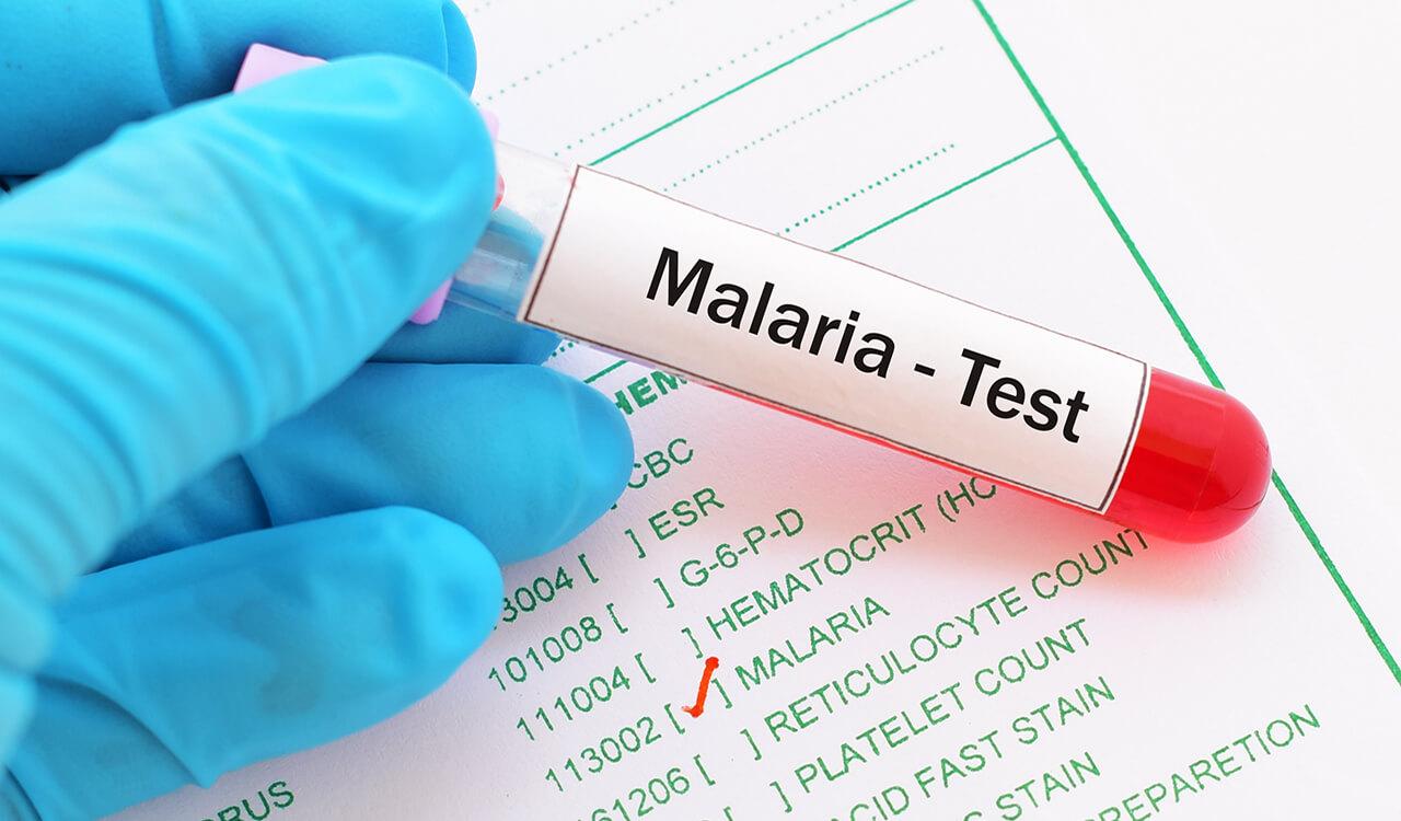 Portable microscope simplifies malaria diagnosis - Springwise